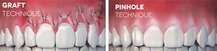Gum Grafting vs. Pinhole Surgical Technique - Nashville, TN