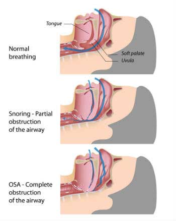 Sleep Apnea in Nashville, TN