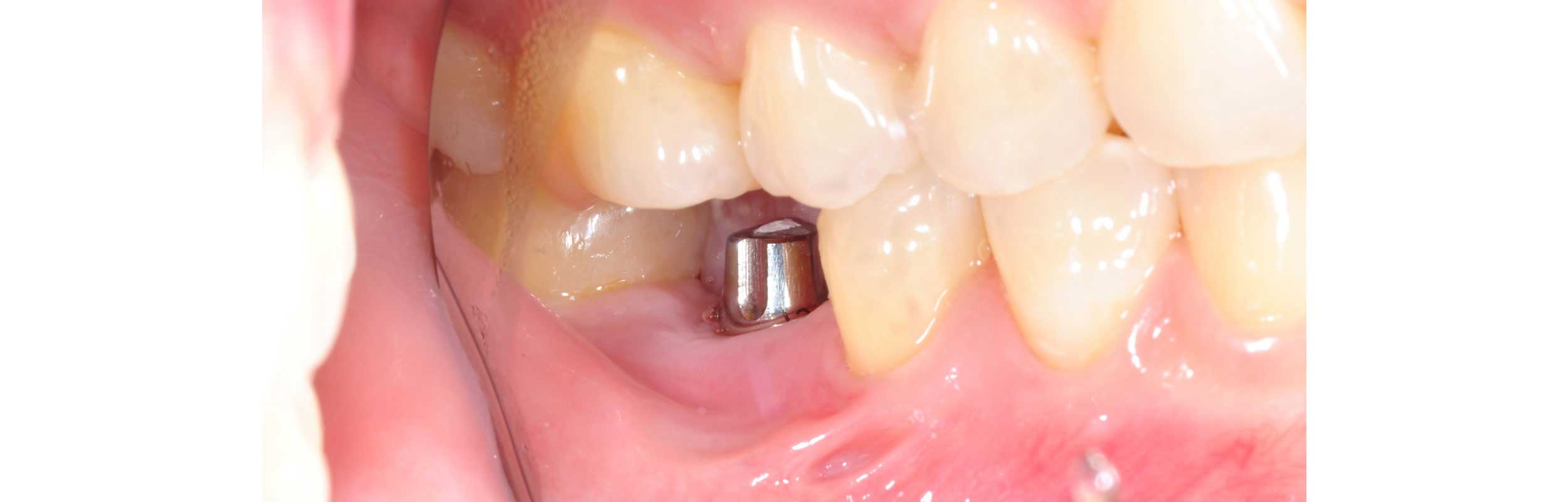 dental implants in Nashville, TN