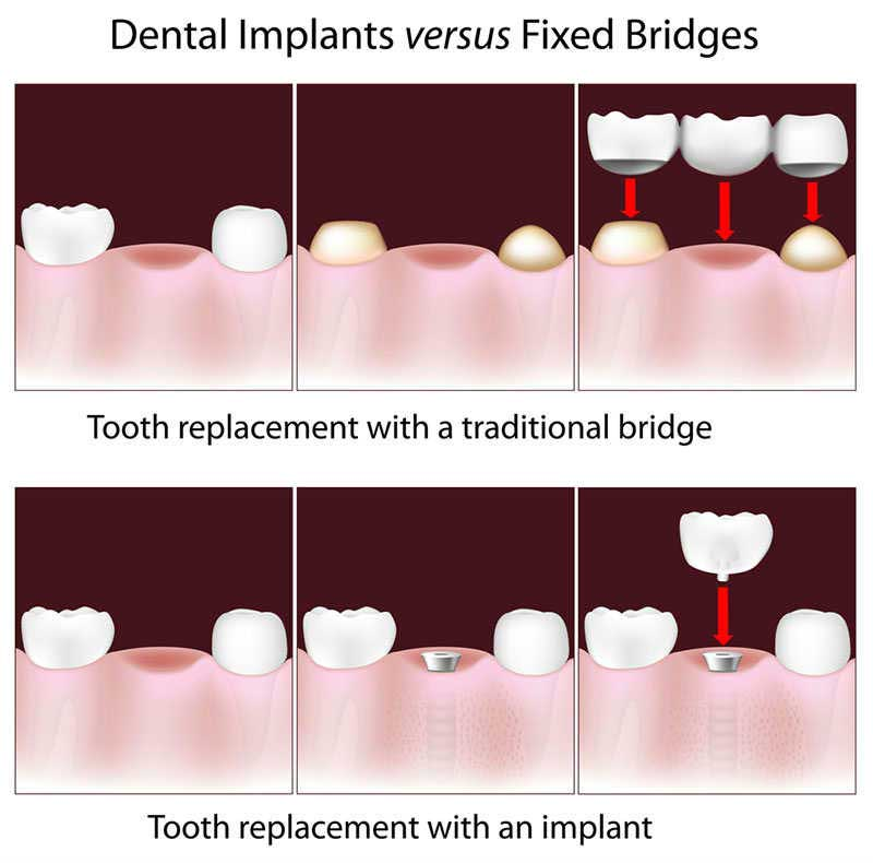 Dental Bridges in Nashville, TN