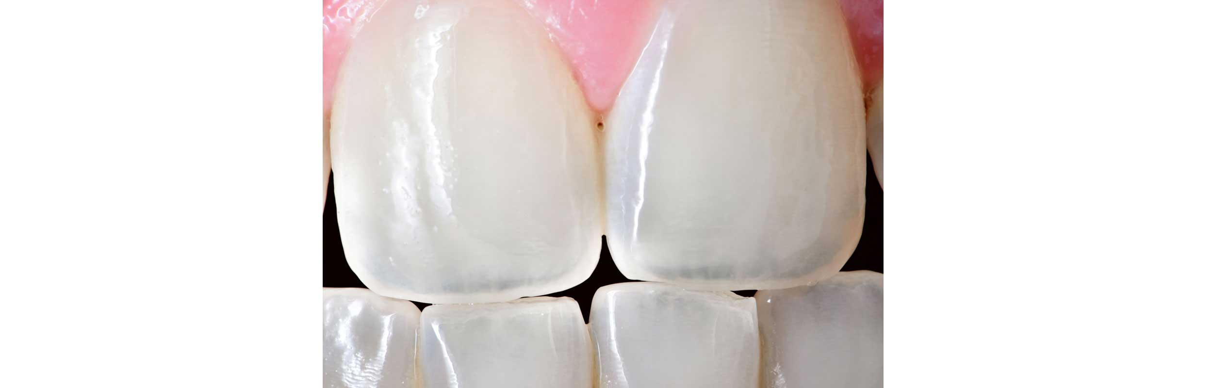 Composite Fillings in Nashville, TN