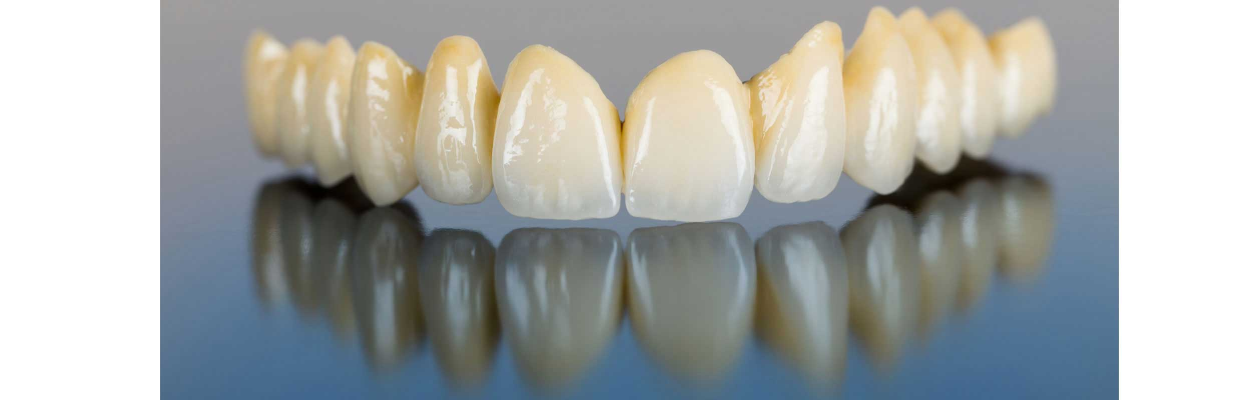 Crowns and bridges at Belle Meade Dental - Nashville, TN