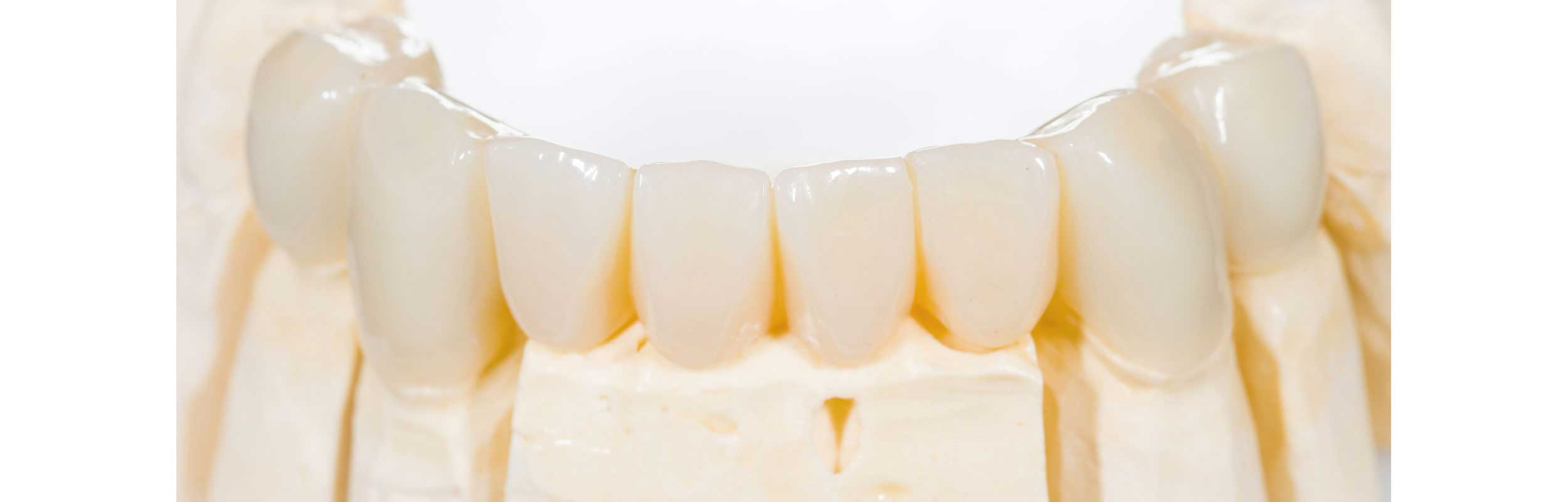 dental crowns at Belle Meade Dental - Nashville, TN