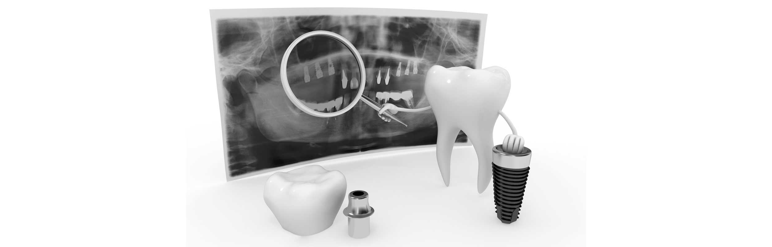 Dental Implant Experts - Belle Meade Dental - Nashville, TN