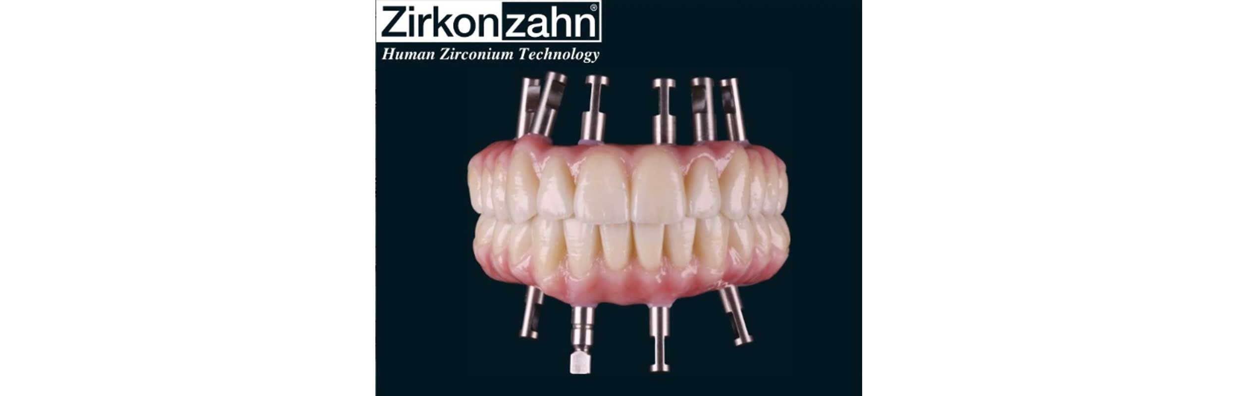 All on 4 Dental Implants in Nashville, TN