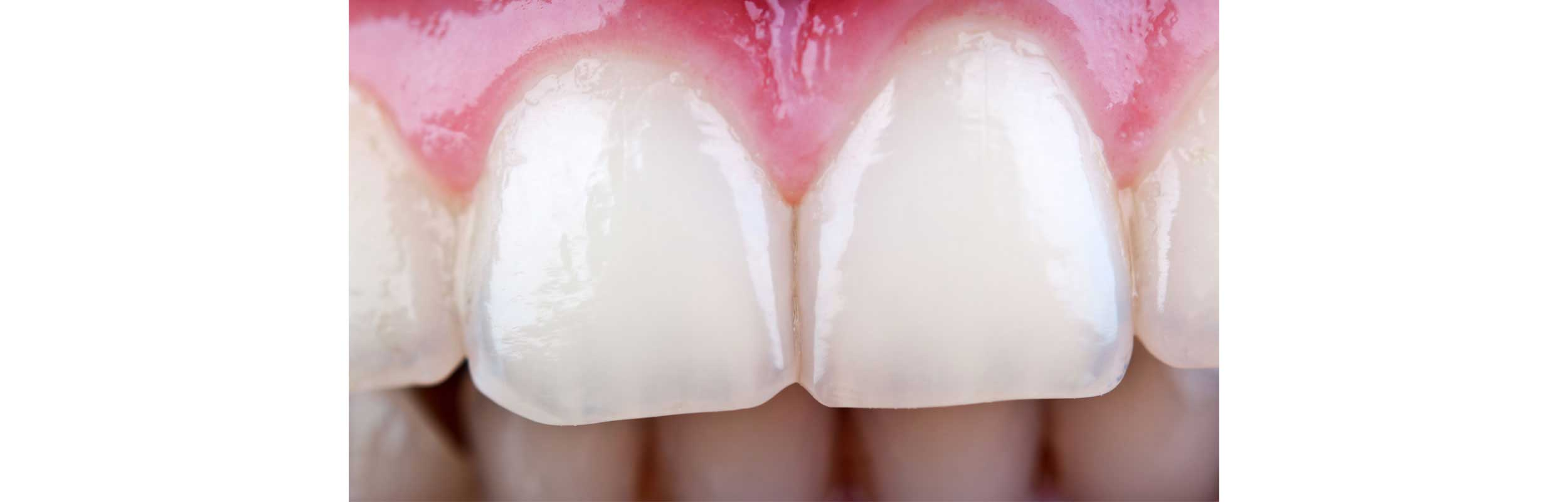 Periodontal Plastic Surgery - Nashville, TN