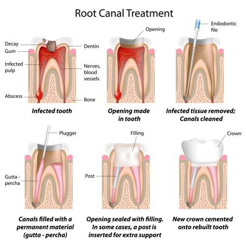 Root Canal in Nashville, TN