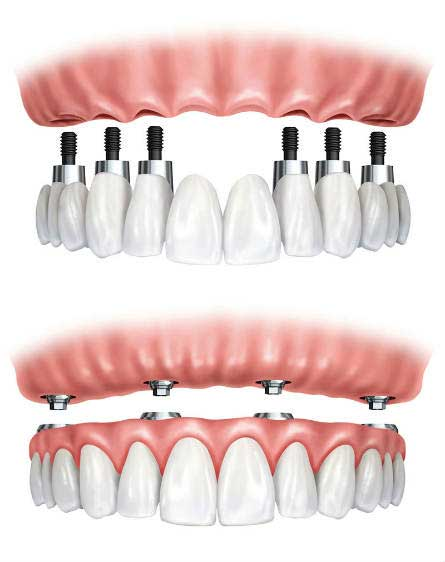 Implant Supported Dentures at Belle Meade Dental - Nashville, TN