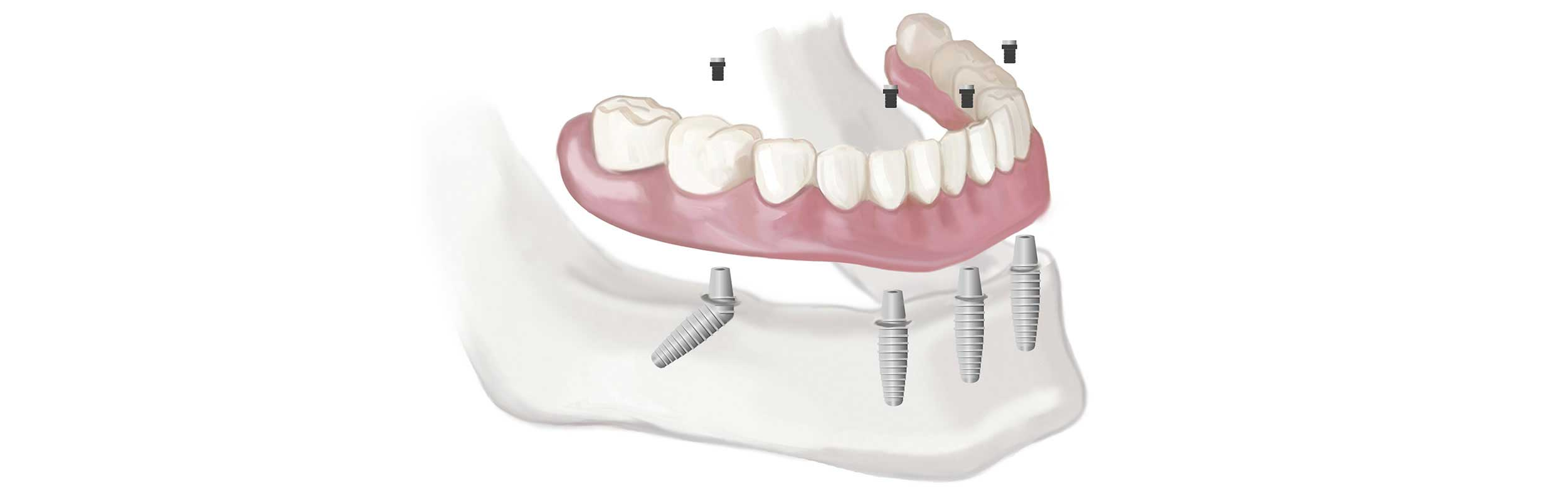 All-on-4 dental implants in Nashville, TN