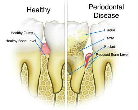 periodontal disease - Nashville, TN