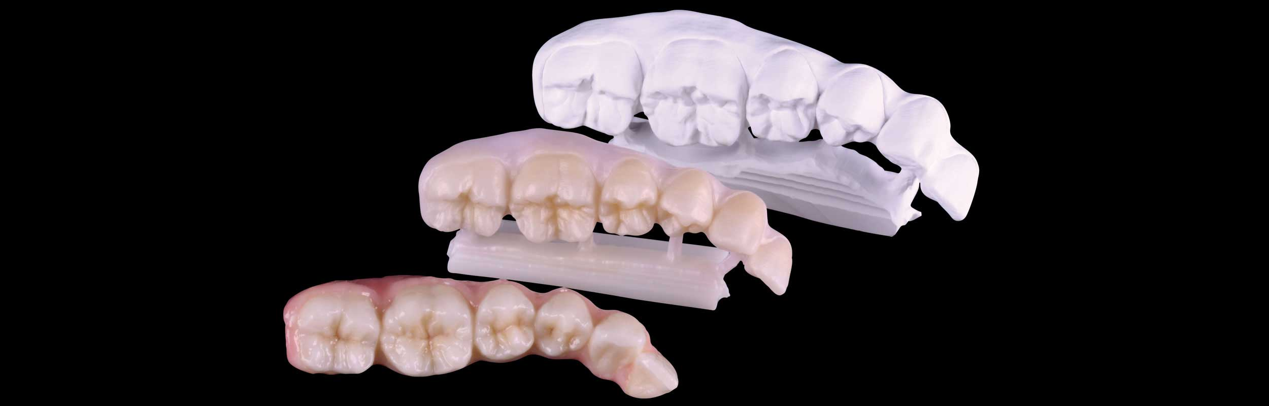 3-D milled restorations - Nashville, TN
