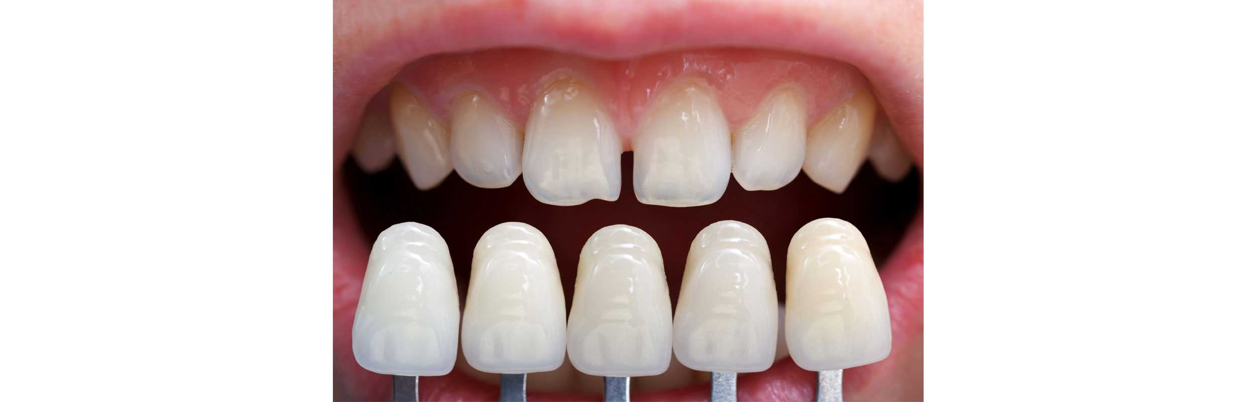 Porcelain Veneers - Nashville, TN